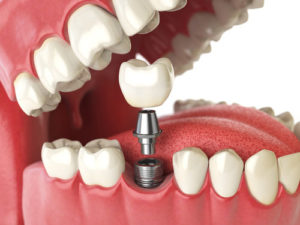 dental implants Quincy MA | dental implant Quincy MA | teeth replacement